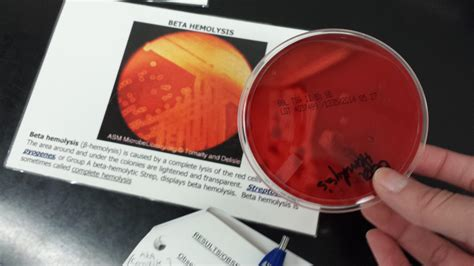 Micro Lab urine culture - Microbiology 230 with Degnan at