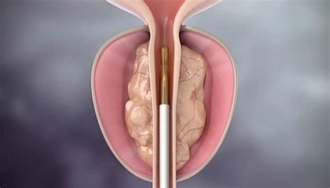 Prostate steaming treatment being offered to Australian