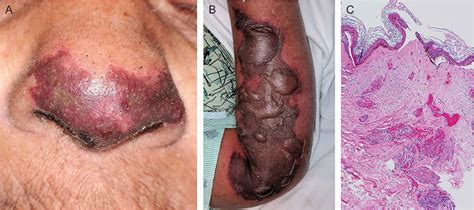 Vasculitis due to levamisole-adulterated cocaine